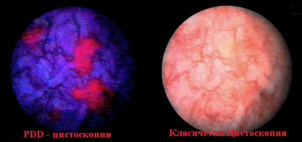 Фотодинамична диагностика при тумори на пикочния мехур