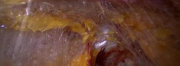 Лапароскопски образ при безкръвна простатектомия