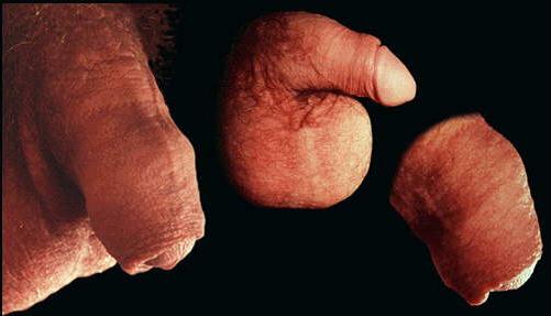 Нормален и обрязан пенис