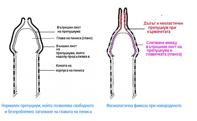fimoza-normalna-novorodeno