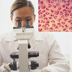 Микроскопско изследване за гонорея