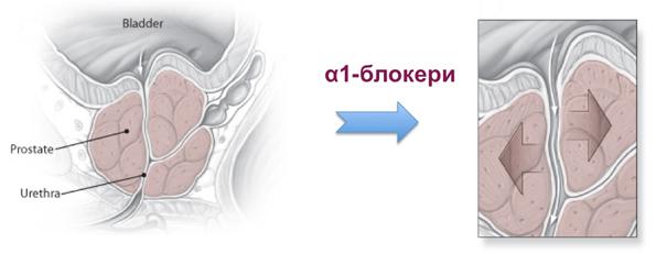 alpha-bolckers-prostata