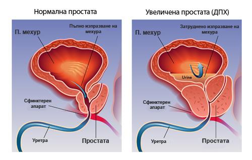 ugolemena-prostata-anatomia