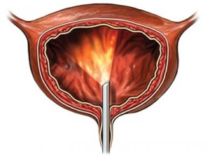 Цистоскопия при тумори на пикочния мехур