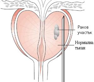 Биопсия на простатата