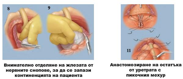 Операция при рак на простатата