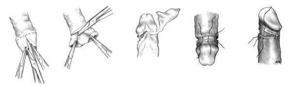 Операция при фимоза - циркумцизия