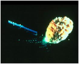Лазерно разбиване на камък