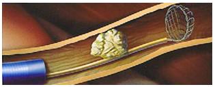 Изваждане на камък от уретера