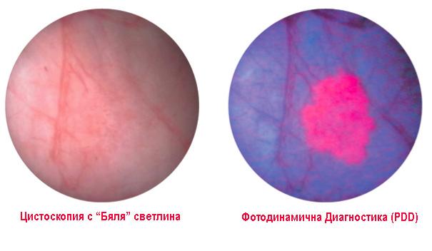 Тумори на пикочния мехур