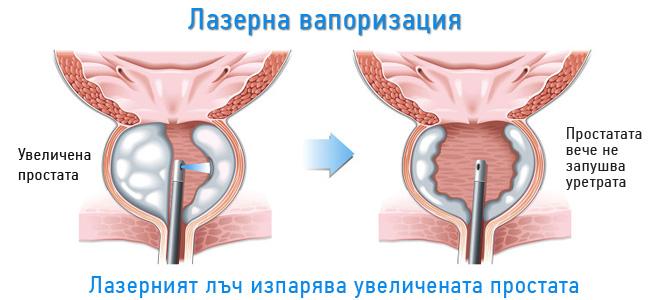 prostata-vaporizaciq-lazer