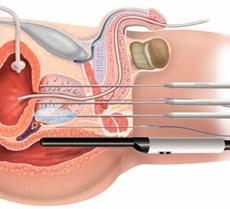 Достъп до простатата при брахитерапия
