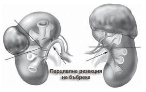 Парциална резекция на бъбрека