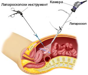 Лапароскопски безкръвни операции