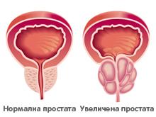 Увеличена простата