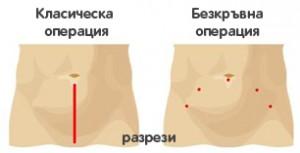 Оперативни достъпи при рак на простатата