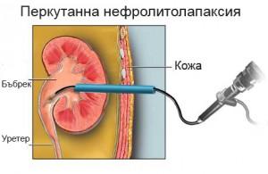 Перкутанна нефролитолапаксия (ПНЛ)