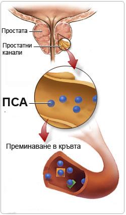 Простатно специфичен античен (PSA)