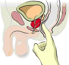 Ректално туширане на простатата
