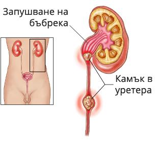 Камък в уретера и хидронефроза