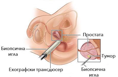 biopsia-na-prostatata