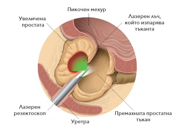laserna-vaporizacia-uvelichena-prostata