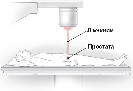 lucheterapiq-rak-na-prostatata