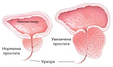 uvelichena-prostata-simptomi