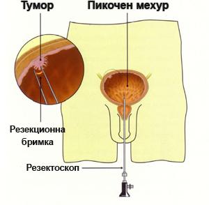 Трансуретрална резекция на рак на пикочния мехур