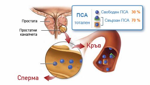 PSA-obshta-shema