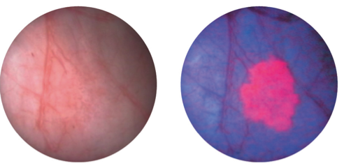 tumor-na-pikochnia-mehur-PDD