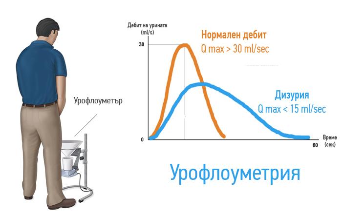 uroflowmetria-problemi-s-uriniraneto