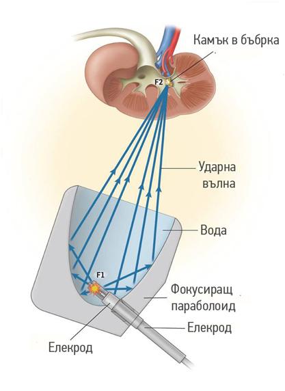 Електрохидравличен литотриптор