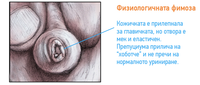 fimoza-pri-deca