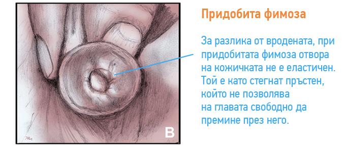 fimoza-pridobita