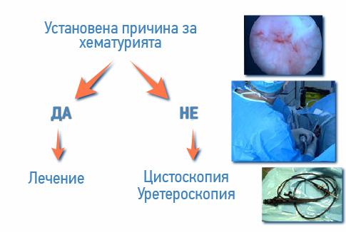 hematuria-lechenie