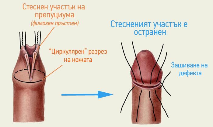 obrqzvane-fimoza