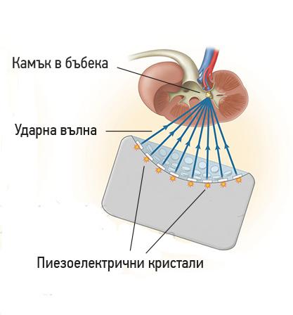 Пиезоелектричен литотриптор
