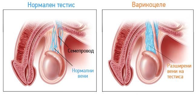 varicocele-anatomia