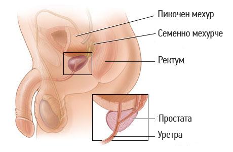 prostata-anatomiq-operacia