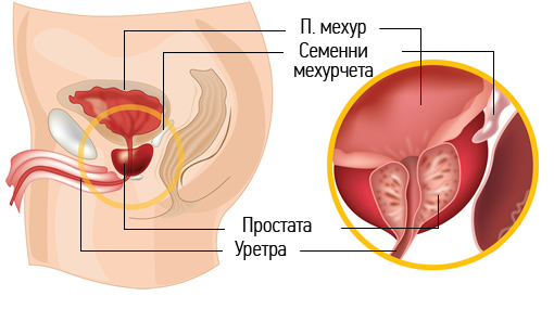 prostata-lazer