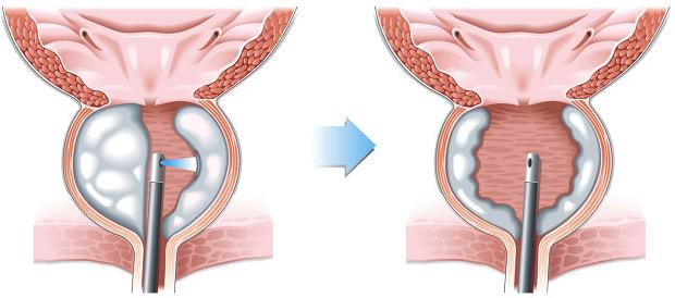 prostata-lazerna-vaporizacia