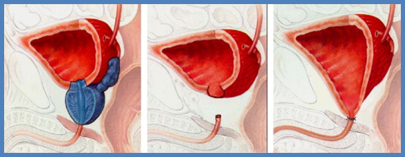 radicalna-prostatectomia