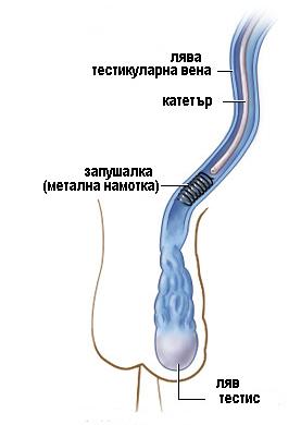 varicocele-embolizacia-localna