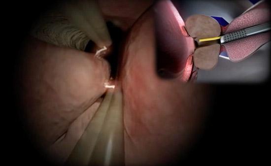 transuretralna-rezekcia-na-prostatata