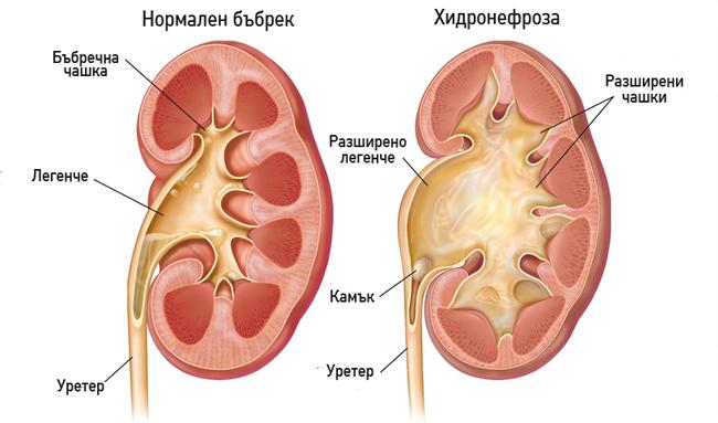 Хидронефроза