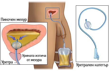 uvelichena-prostata-retencia-na-urinata