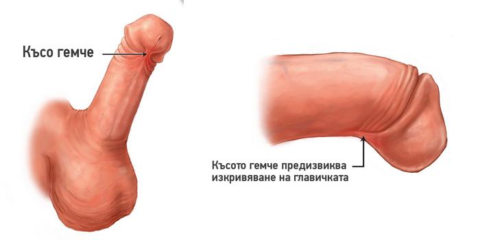 kuso-gemche-penis