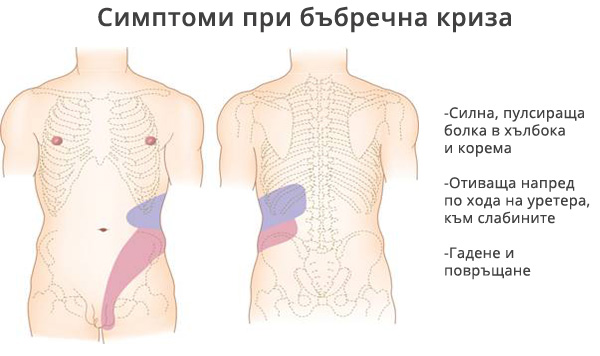 bubrechna-kriza-bolki-1