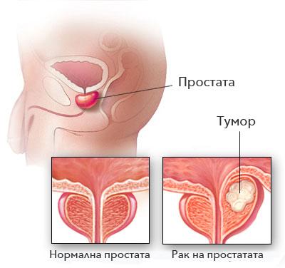 rak-na-prostatata-2